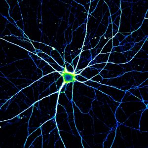 Single-Neuron